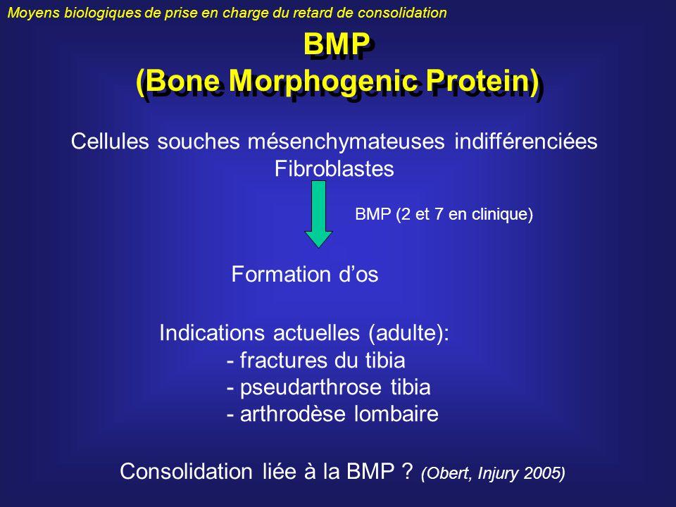 Moyens biologiques de prise en charge du retard de consolidation BMP (Bone Morphogenic Protein) BMP (Bone Morphogenic Protein) Cellules souches mésenc