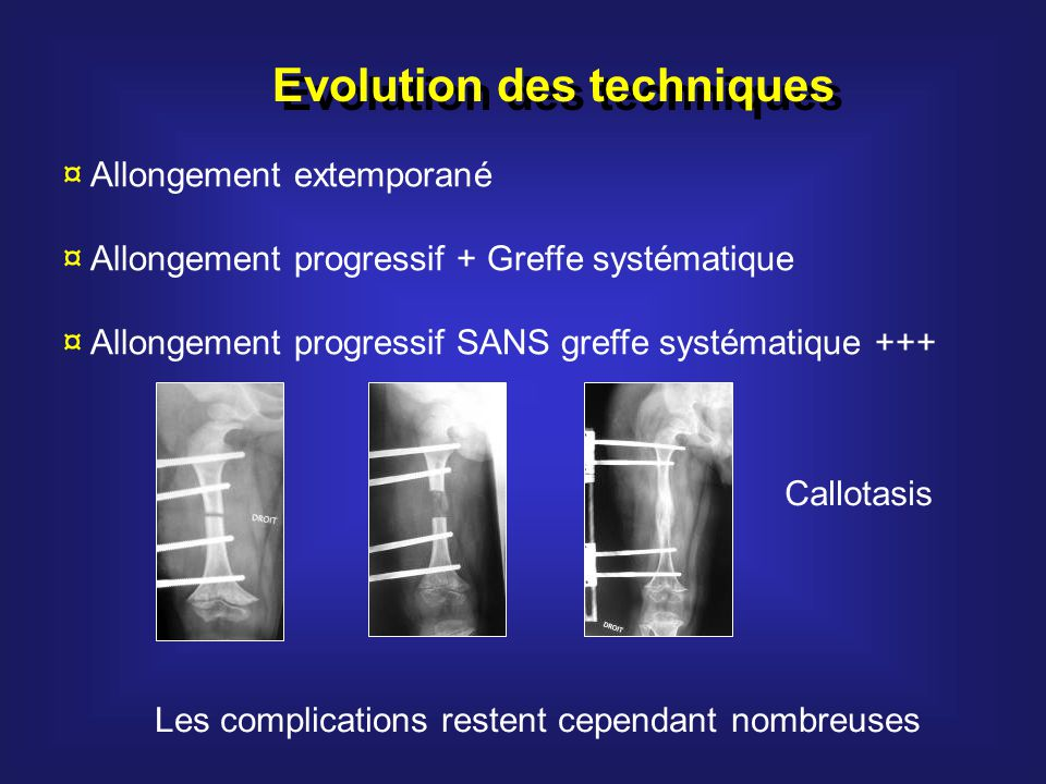 Evolution des techniques ¤ Allongement extemporané ¤ Allongement progressif + Greffe systématique ¤ Allongement progressif SANS greffe systématique ++