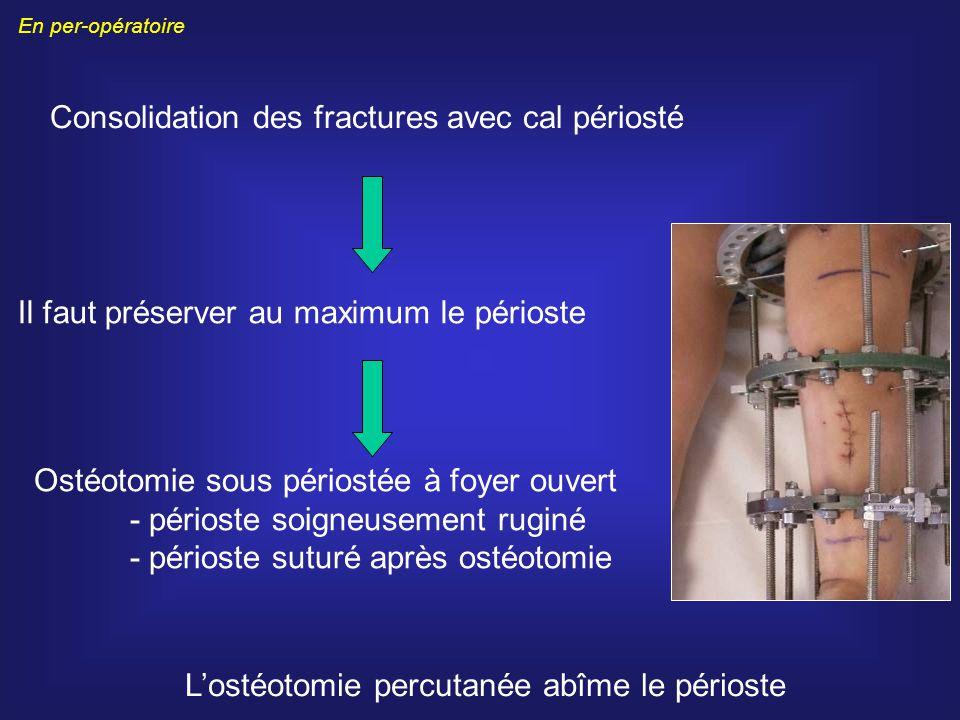 Consolidation des fractures avec cal périosté Il faut préserver au maximum le périoste Ostéotomie sous périostée à foyer ouvert - périoste soigneuseme