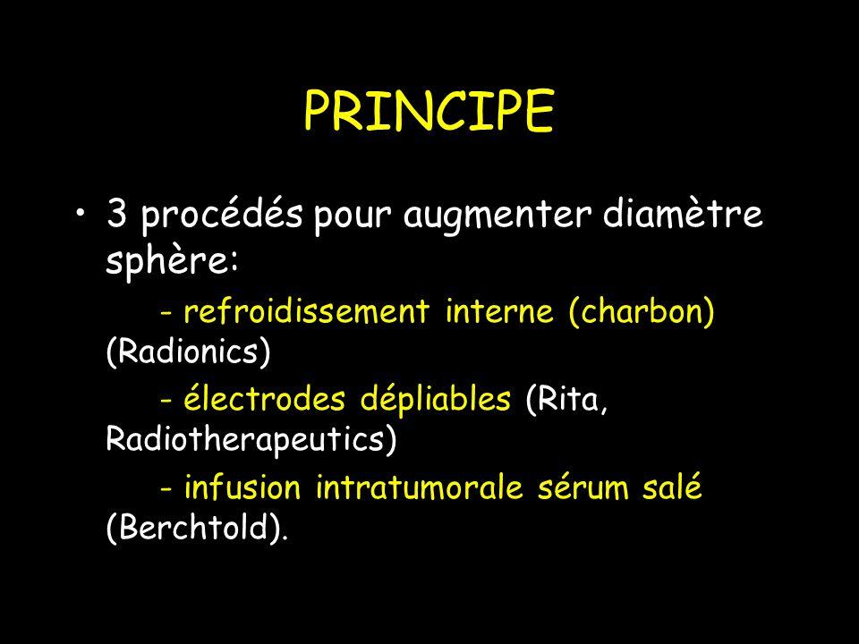 PRINCIPE 3 procédés pour augmenter diamètre sphère: - refroidissement interne (charbon) (Radionics) - électrodes dépliables (Rita, Radiotherapeutics) - infusion intratumorale sérum salé (Berchtold).