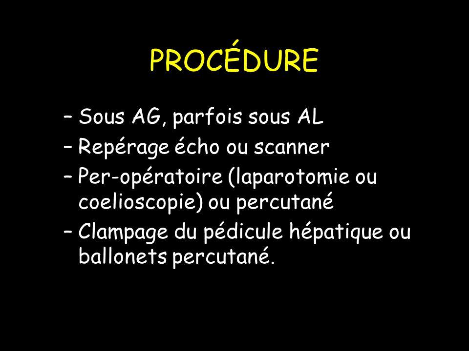 PROCÉDURE –Sous AG, parfois sous AL –Repérage écho ou scanner –Per-opératoire (laparotomie ou coelioscopie) ou percutané –Clampage du pédicule hépatique ou ballonets percutané.