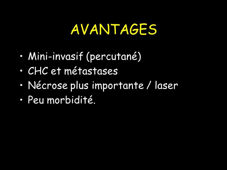 AVANTAGES Mini-invasif (percutané) CHC et métastases Nécrose plus importante / laser Peu morbidité.