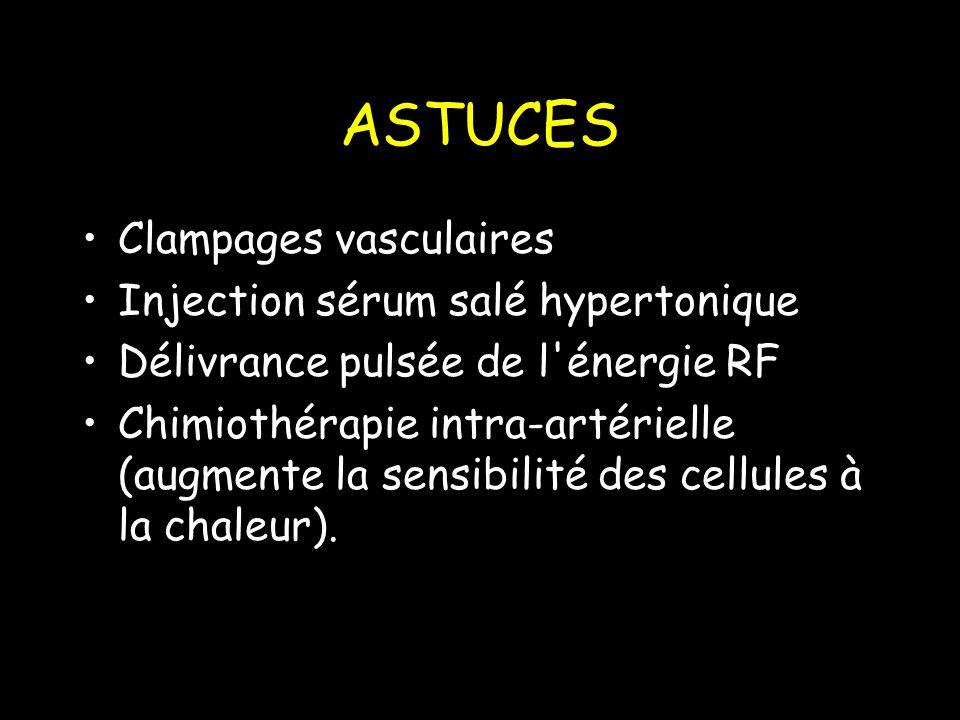 ASTUCES Clampages vasculaires Injection sérum salé hypertonique Délivrance pulsée de l énergie RF Chimiothérapie intra-artérielle (augmente la sensibilité des cellules à la chaleur).