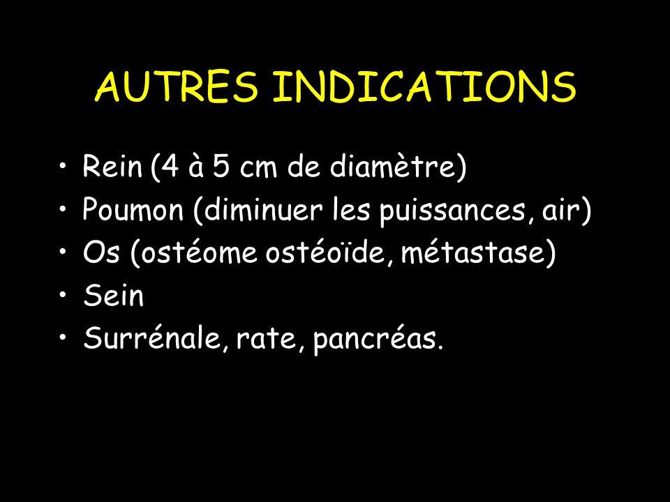 AUTRES INDICATIONS Rein (4 à 5 cm de diamètre) Poumon (diminuer les puissances, air) Os (ostéome ostéoïde, métastase) Sein Surrénale, rate, pancréas.