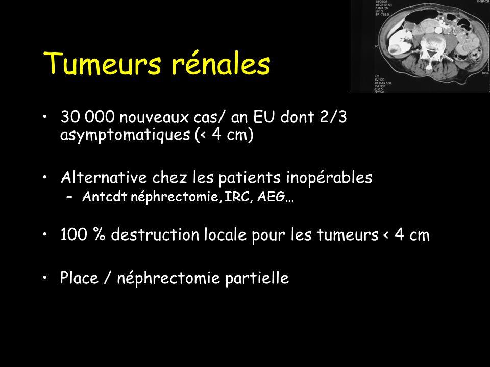 Tumeurs rénales 30 000 nouveaux cas/ an EU dont 2/3 asymptomatiques (< 4 cm) Alternative chez les patients inopérables –Antcdt néphrectomie, IRC, AEG… 100 % destruction locale pour les tumeurs < 4 cm Place / néphrectomie partielle