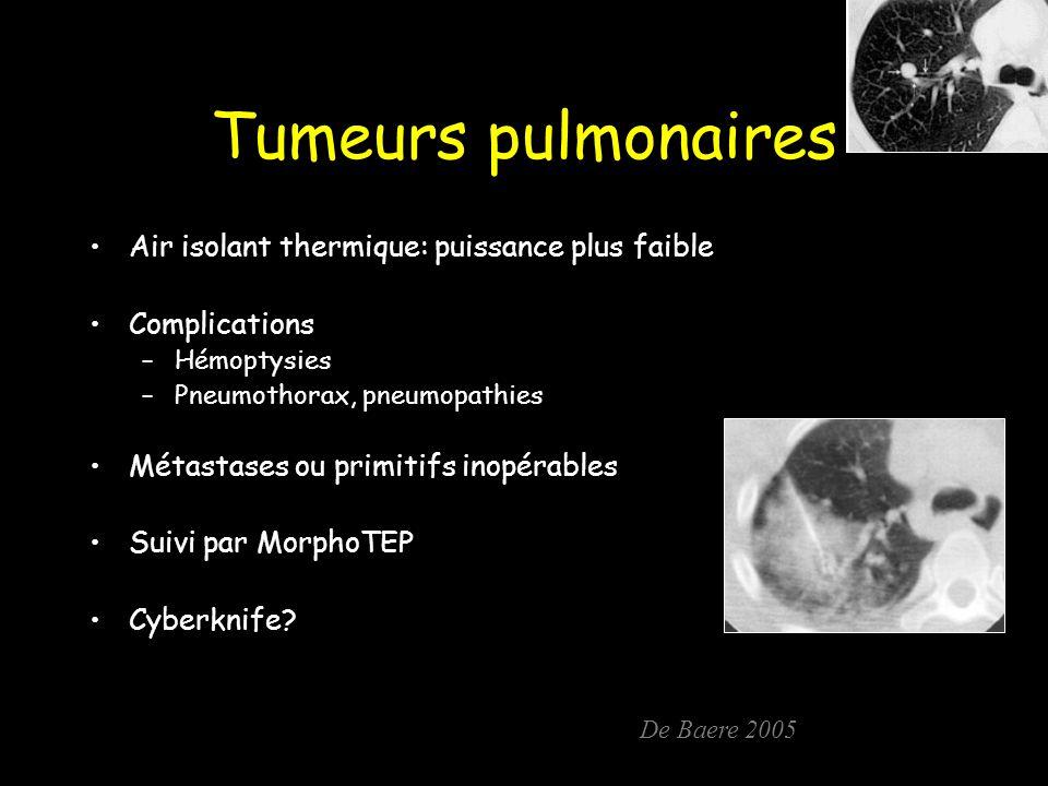 Tumeurs pulmonaires Air isolant thermique: puissance plus faible Complications –Hémoptysies –Pneumothorax, pneumopathies Métastases ou primitifs inopérables Suivi par MorphoTEP Cyberknife.