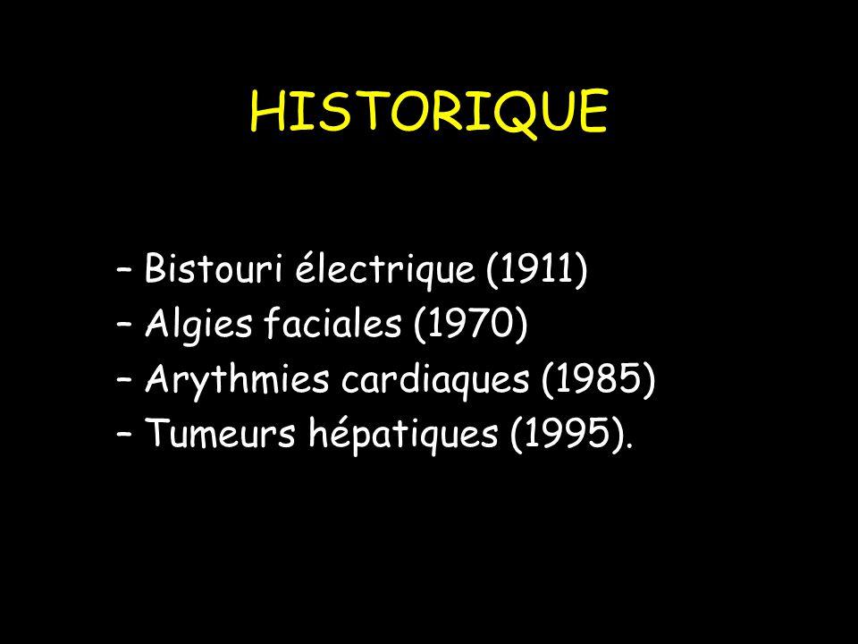 HISTORIQUE –Bistouri électrique (1911) –Algies faciales (1970) –Arythmies cardiaques (1985) –Tumeurs hépatiques (1995).