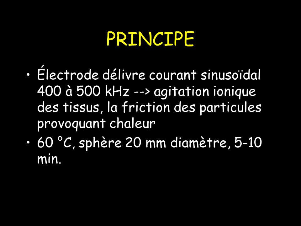PRINCIPE Électrode délivre courant sinusoïdal 400 à 500 kHz --> agitation ionique des tissus, la friction des particules provoquant chaleur 60 °C, sphère 20 mm diamètre, 5-10 min.