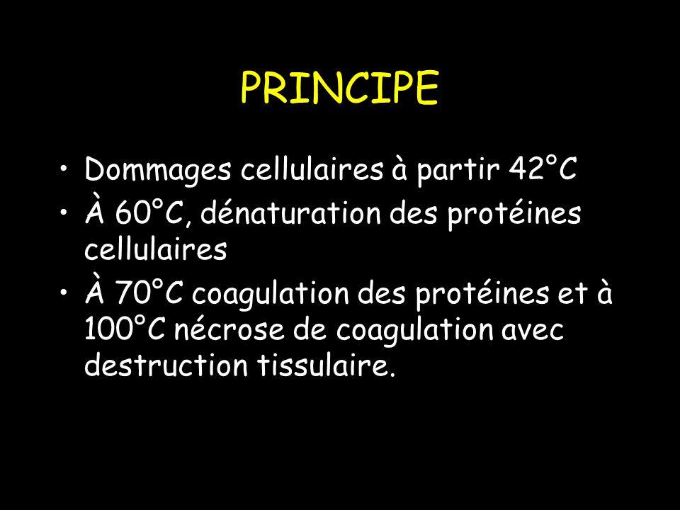 PRINCIPE Dommages cellulaires à partir 42°C À 60°C, dénaturation des protéines cellulaires À 70°C coagulation des protéines et à 100°C nécrose de coagulation avec destruction tissulaire.