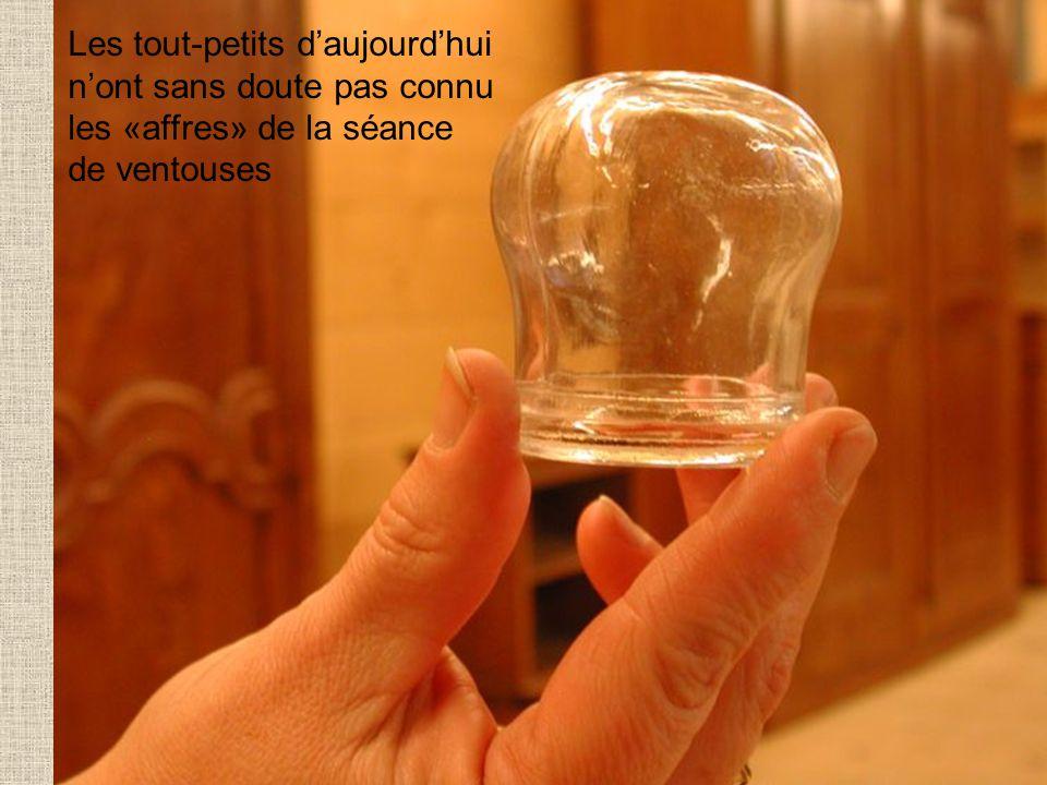 Les tout-petits daujourdhui nont sans doute pas connu les «affres» de la séance de ventouses