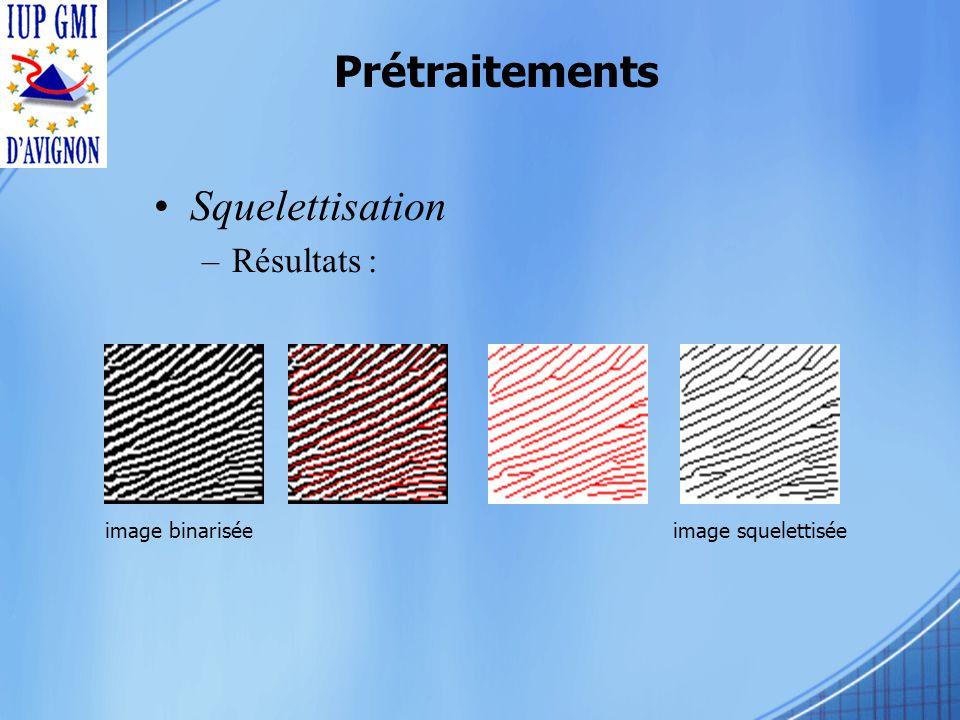 Prétraitements Squelettisation –Résultats : image binariséeimage squelettisée