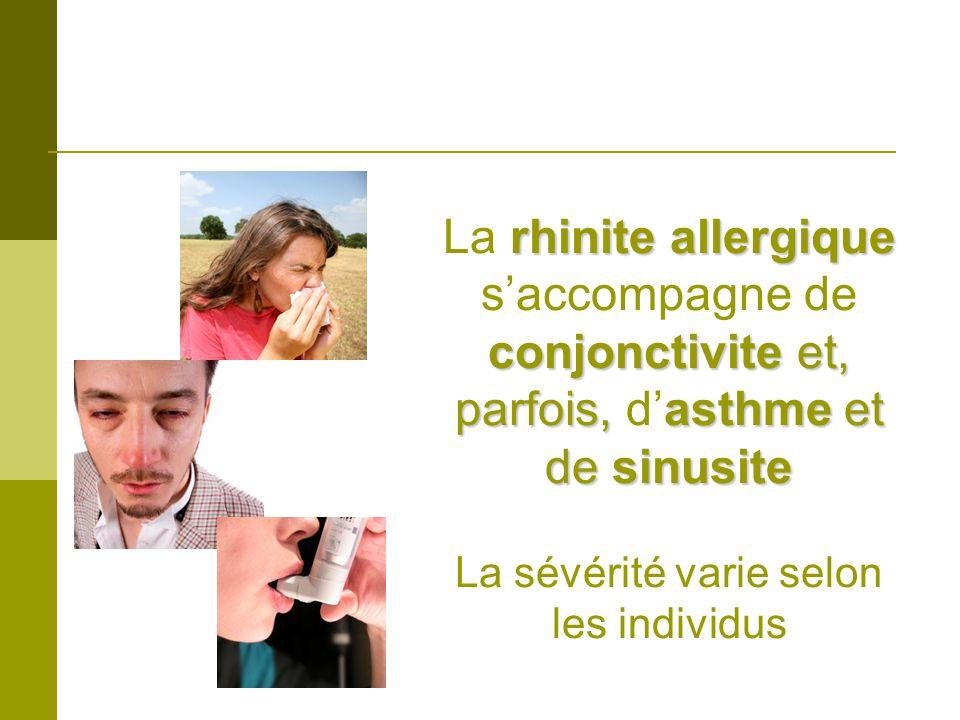 rhinite allergique conjonctivite et, parfois, asthme et de sinusite La rhinite allergique saccompagne de conjonctivite et, parfois, dasthme et de sinusite La sévérité varie selon les individus