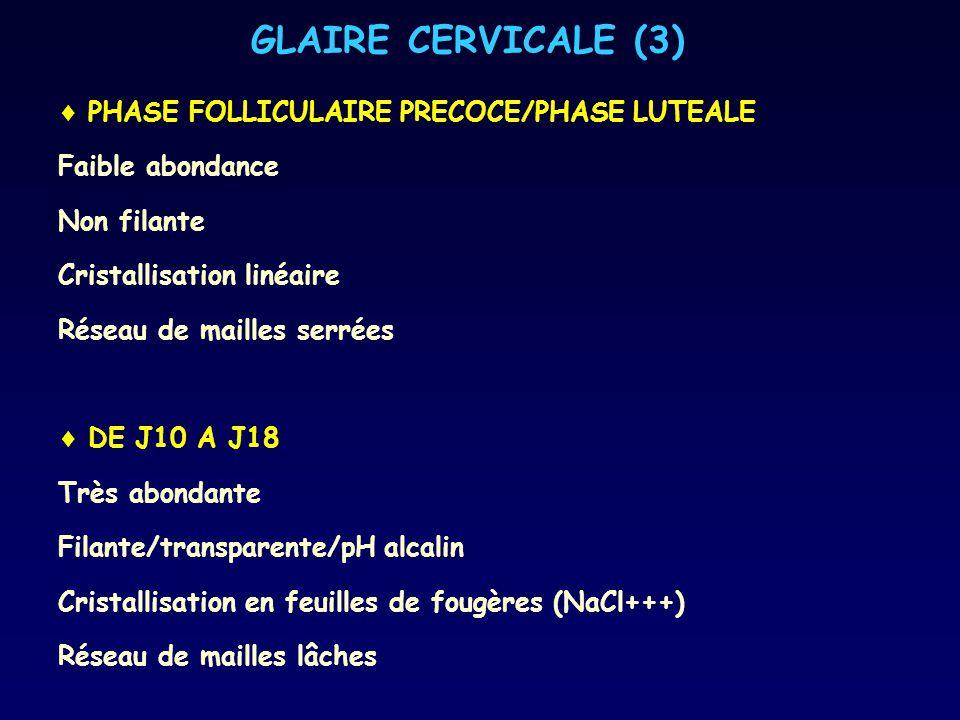 GLAIRE CERVICALE (3) PHASE FOLLICULAIRE PRECOCE/PHASE LUTEALE Faible abondance Non filante Cristallisation linéaire Réseau de mailles serrées DE J10 A