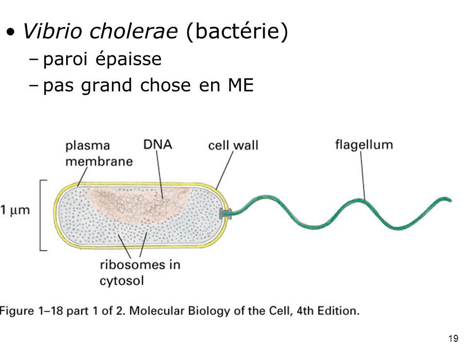 19 Fig 1-18(A) Vibrio cholerae (bactérie) –paroi épaisse –pas grand chose en ME