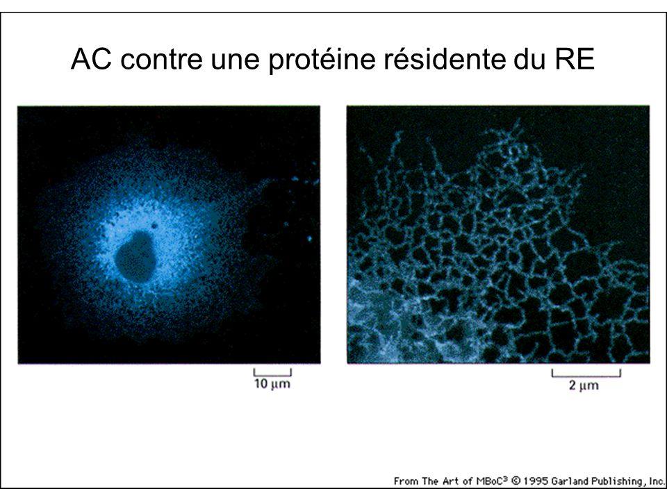 Fig 12-35 AC contre une protéine résidente du RE Cellule de plante vivante + protéine fluorescente