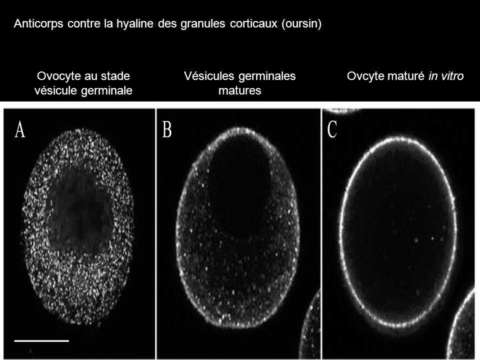 Berg LK, Wessel GM. Cortical granules of the sea urchin translocate early in oocyte maturation. Development. 1997, 24(9):1845-50. Timing of CG translo