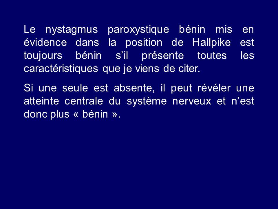 Le nystagmus paroxystique bénin mis en évidence dans la position de Hallpike est toujours bénin sil présente toutes les caractéristiques que je viens