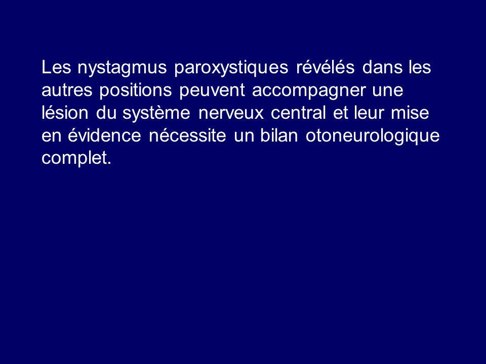 Les nystagmus paroxystiques révélés dans les autres positions peuvent accompagner une lésion du système nerveux central et leur mise en évidence néces