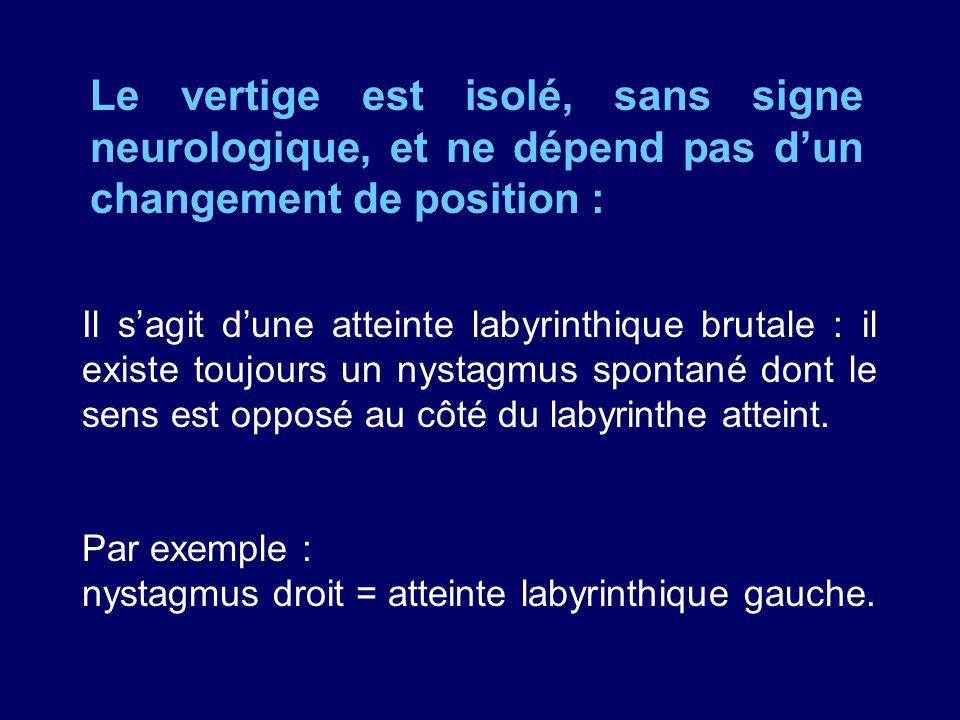 Le vertige est isolé, sans signe neurologique, et ne dépend pas dun changement de position : Il sagit dune atteinte labyrinthique brutale : il existe
