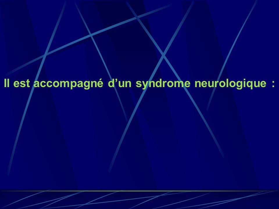 Il est accompagné dun syndrome neurologique :