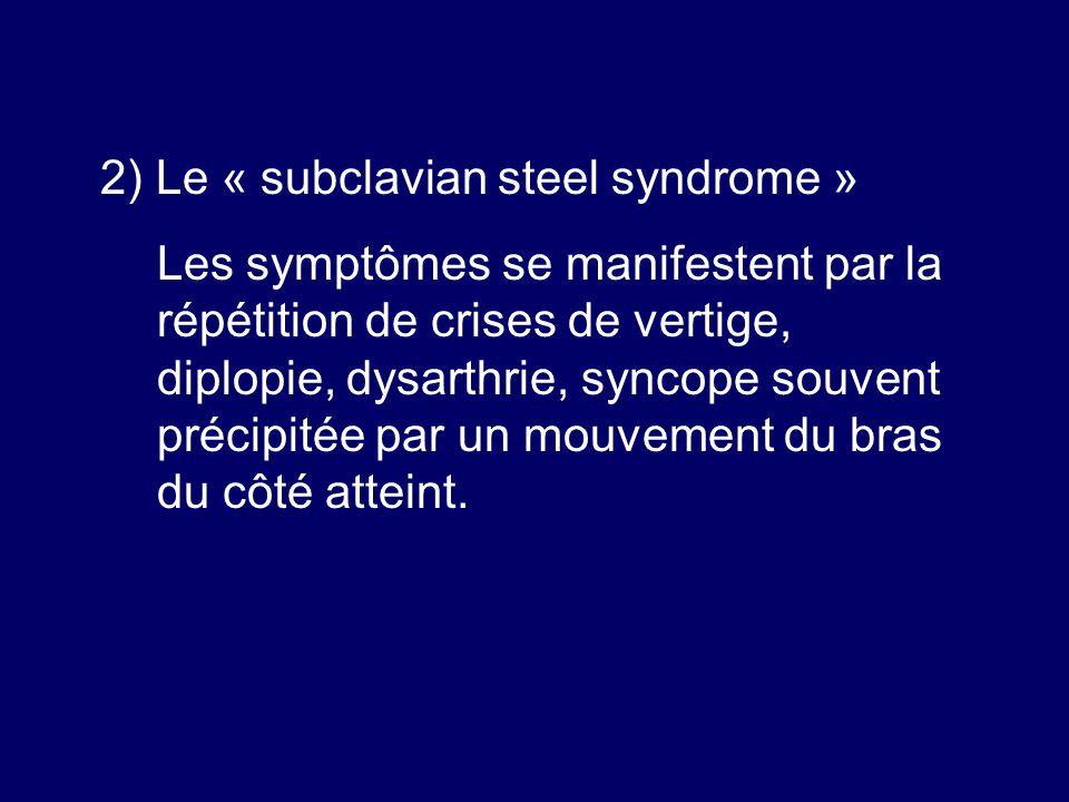 2) Le « subclavian steel syndrome » Les symptômes se manifestent par la répétition de crises de vertige, diplopie, dysarthrie, syncope souvent précipi