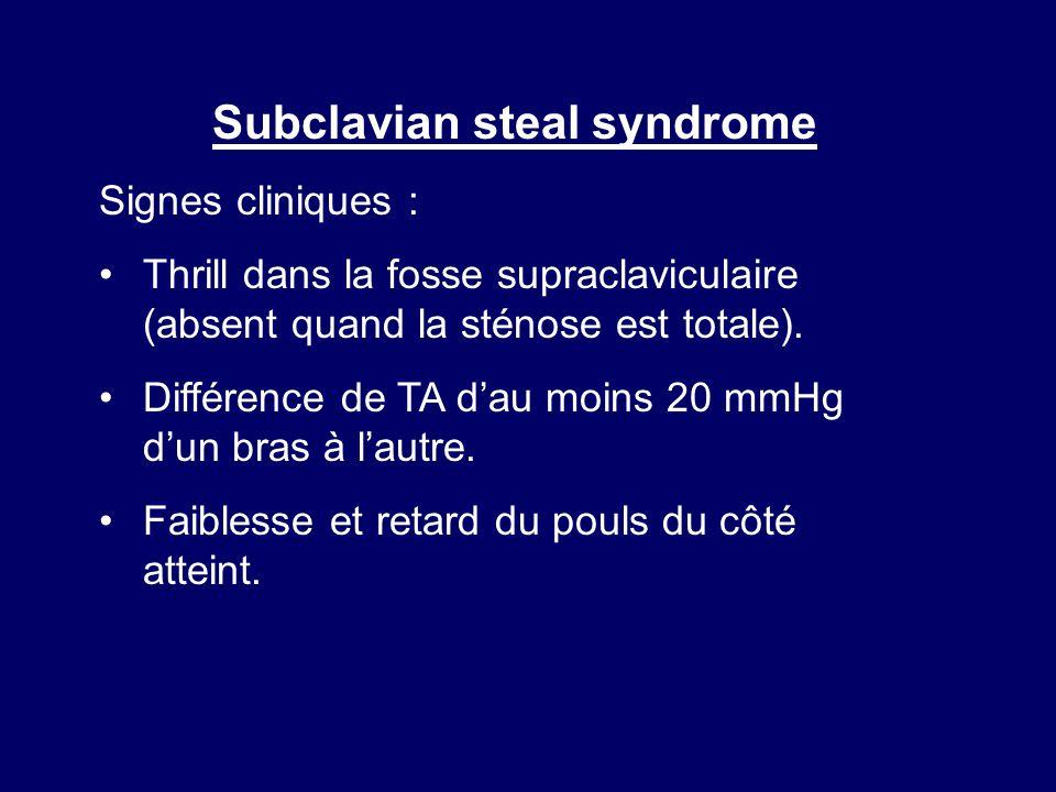 Subclavian steal syndrome Signes cliniques : Thrill dans la fosse supraclaviculaire (absent quand la sténose est totale). Différence de TA dau moins 2