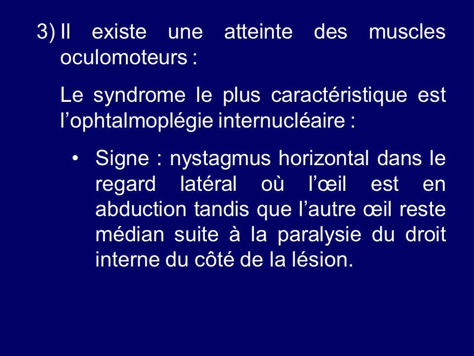 3)Il existe une atteinte des muscles oculomoteurs : Le syndrome le plus caractéristique est lophtalmoplégie internucléaire : Signe : nystagmus horizon