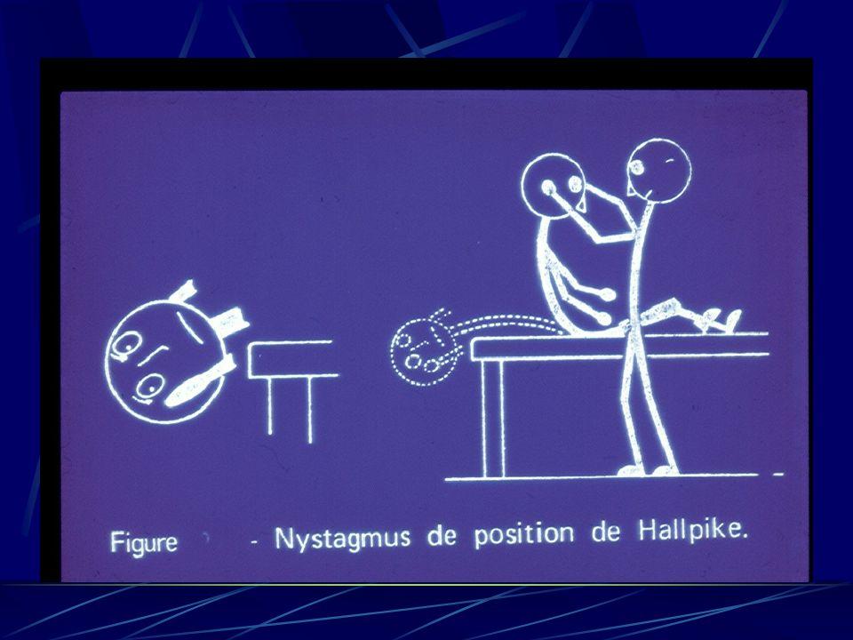 -Rechercher le nystagmus dans les positions : -assise, -couchée, -décubitus latéral droit et gauche, -décubitus dorsal tête en rotation droite puis gauche.