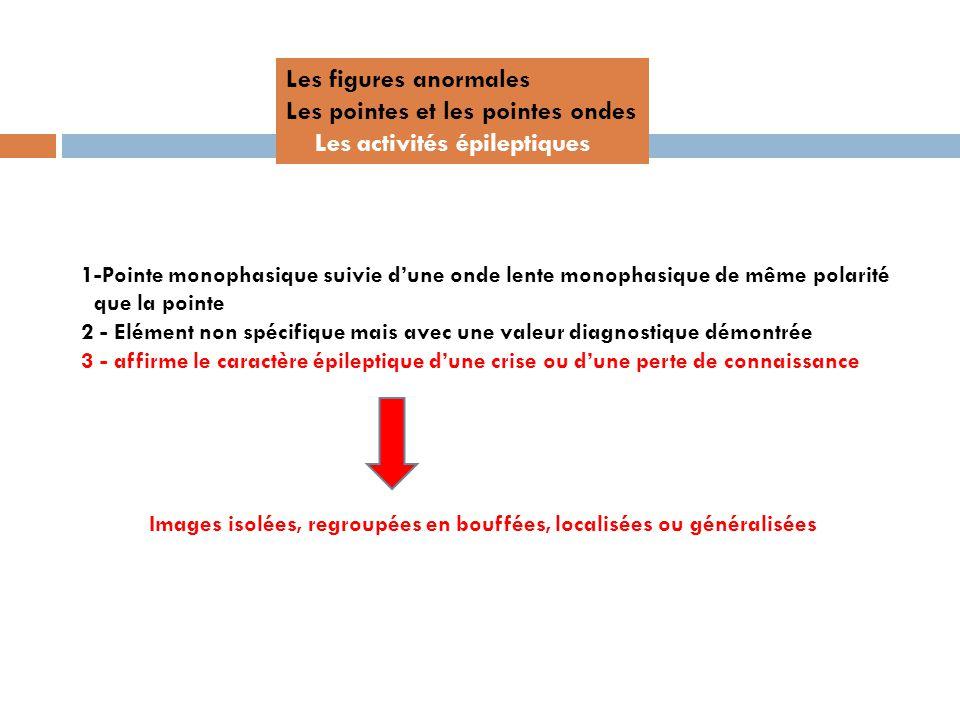 Les figures anormales Les pointes et les pointes ondes Les activités épileptiques 1-Pointe monophasique suivie dune onde lente monophasique de même po