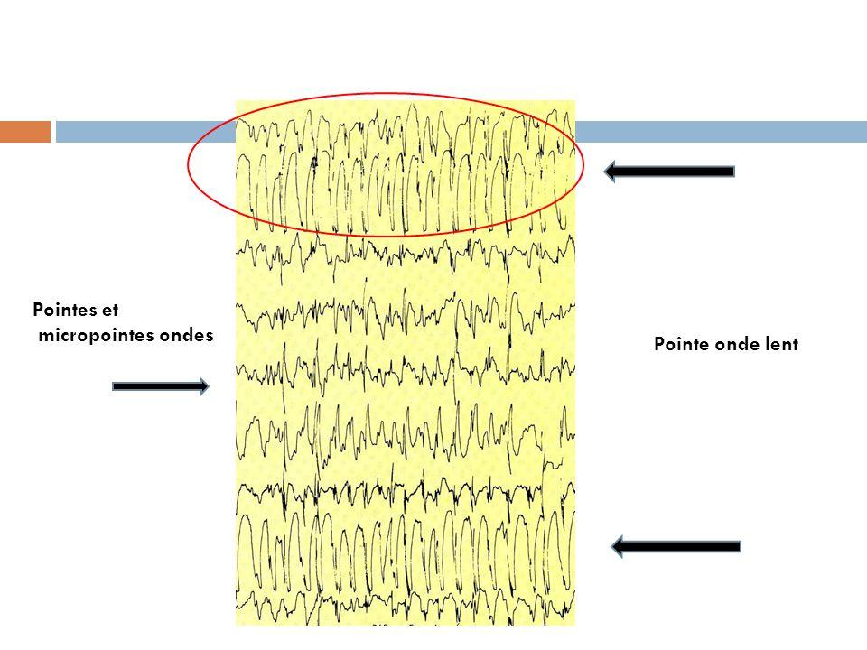 Pointe onde lent Pointes et micropointes ondes