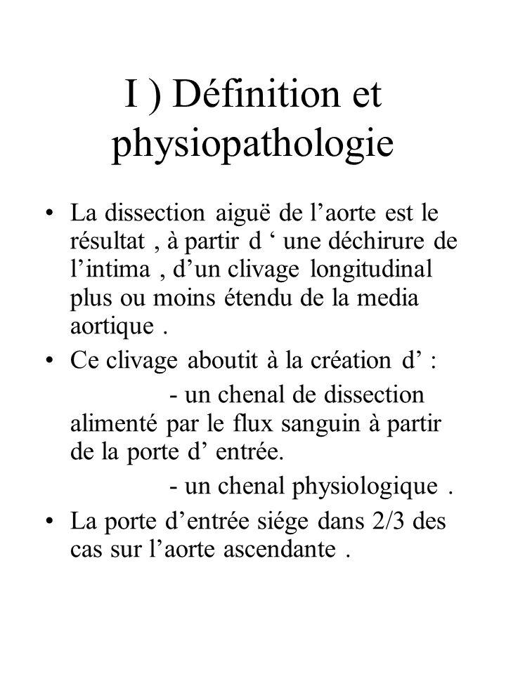 I ) Définition et physiopathologie La dissection aiguë de laorte est le résultat, à partir d une déchirure de lintima, dun clivage longitudinal plus o