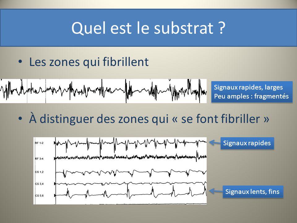 Quel est le substrat ? Les zones qui fibrillent À distinguer des zones qui « se font fibriller » Signaux lents, fins Signaux rapides Signaux rapides,