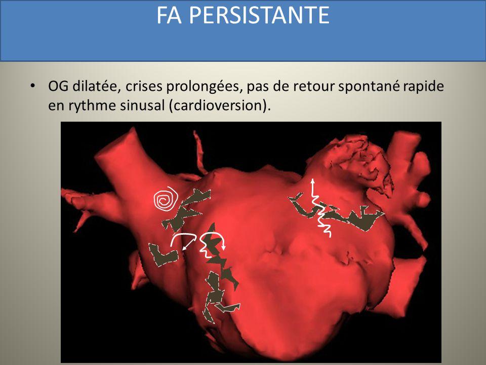 FA PERSISTANTE OG dilatée, crises prolongées, pas de retour spontané rapide en rythme sinusal (cardioversion).