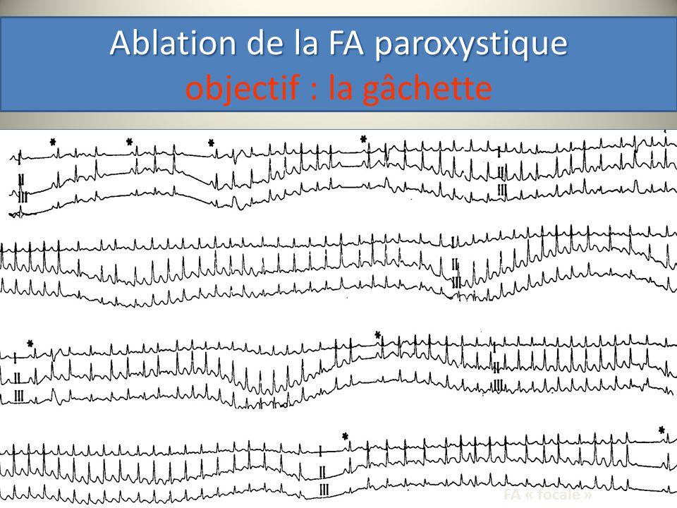 Technique « Milanaise » isolation et segmentation anatomique Pas dEnd point electro-physiologique Méthode purement anatomique