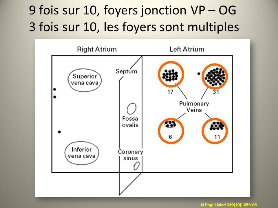 N Engl J Med 339(10): 659-66. 9 fois sur 10, foyers jonction VP – OG 3 fois sur 10, les foyers sont multiples