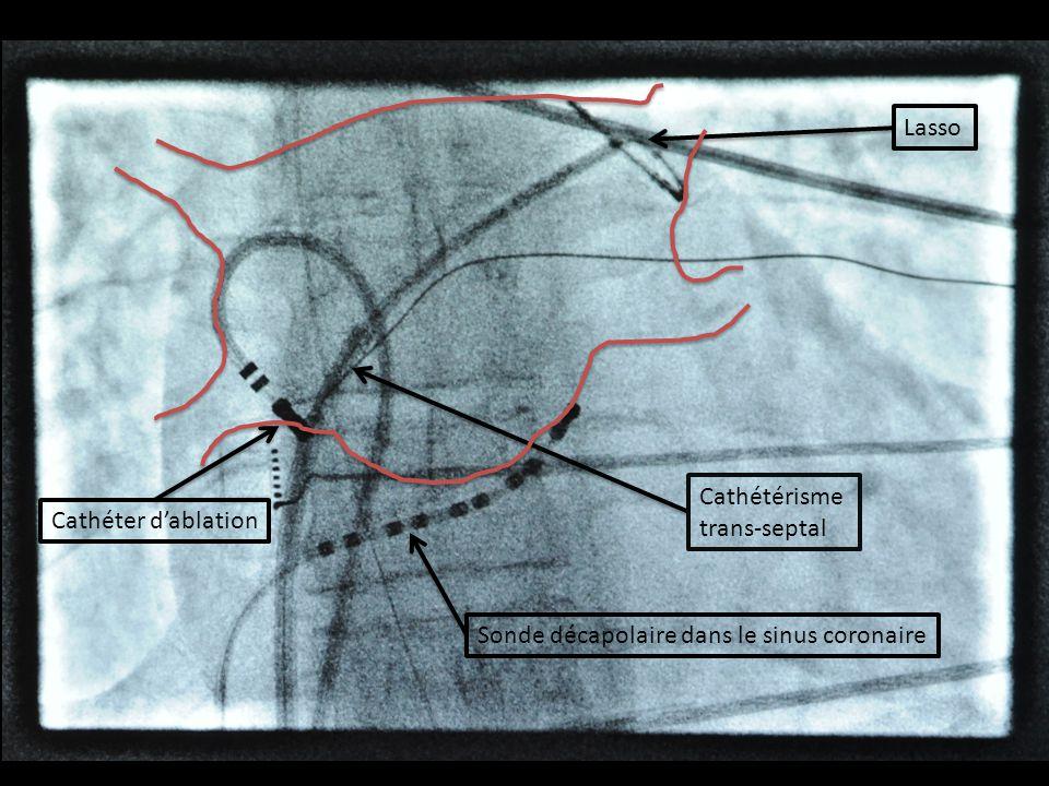Cathétérisme trans-septal Cathéter dablation Lasso Sonde décapolaire dans le sinus coronaire