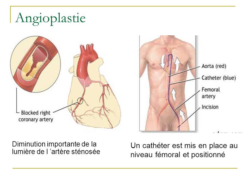 Diminution importante de la lumière de l artère sténosée Un cathéter est mis en place au niveau fémoral et positionné Angioplastie