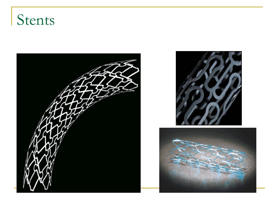 Stents