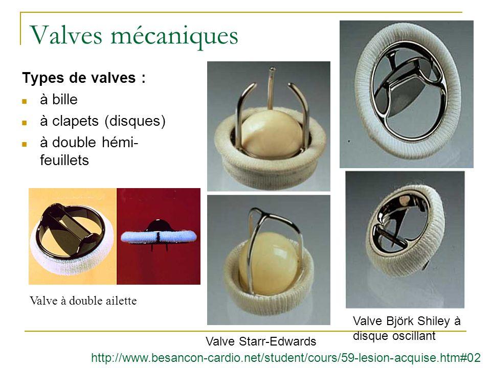 Valves mécaniques Types de valves : à bille à clapets (disques) à double hémi- feuillets Valve à double ailette Valve Björk Shiley à disque oscillant Valve Starr-Edwards http://www.besancon-cardio.net/student/cours/59-lesion-acquise.htm#02