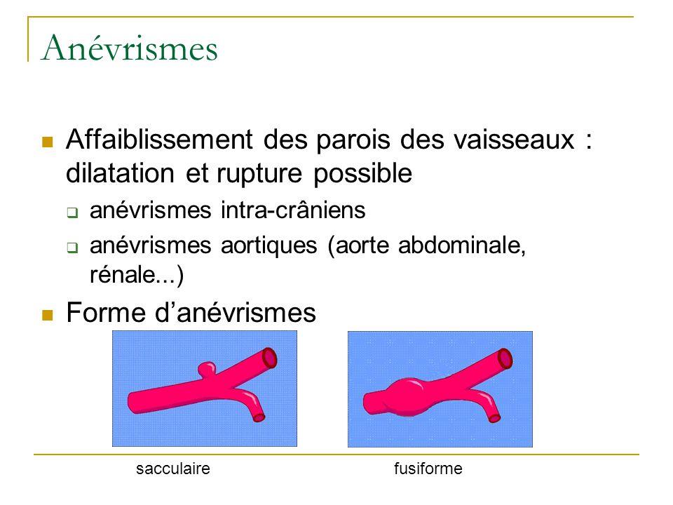 Anévrismes Affaiblissement des parois des vaisseaux : dilatation et rupture possible anévrismes intra-crâniens anévrismes aortiques (aorte abdominale, rénale...) Forme danévrismes sacculairefusiforme
