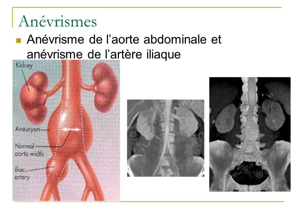 Anévrismes Anévrisme de laorte abdominale et anévrisme de lartère iliaque