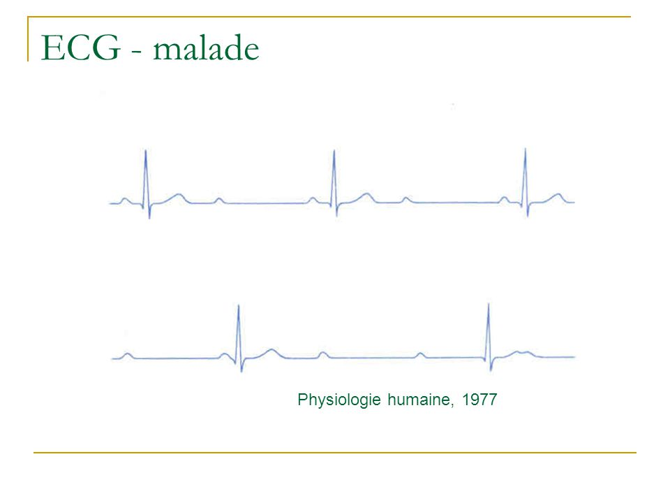 Physiologie cardio-vasculaire Systole/diastole Physiologie humaine, 1977
