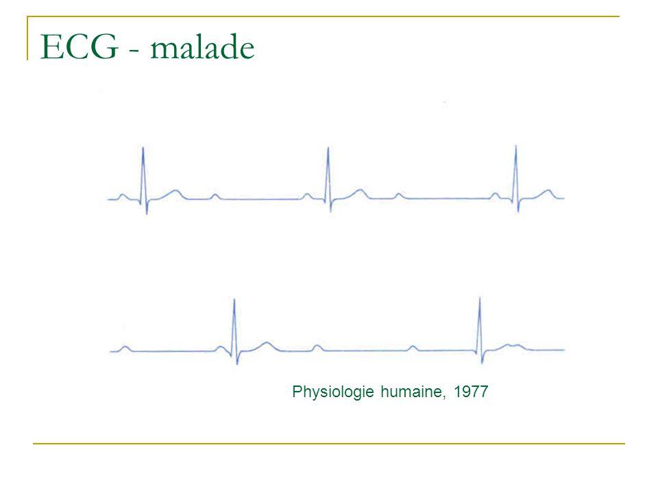 Limitations de langioplastie par ballonnet: Retour élastique de lartère et remodelling (propriétés visco-élastiques des parois vasculaires).
