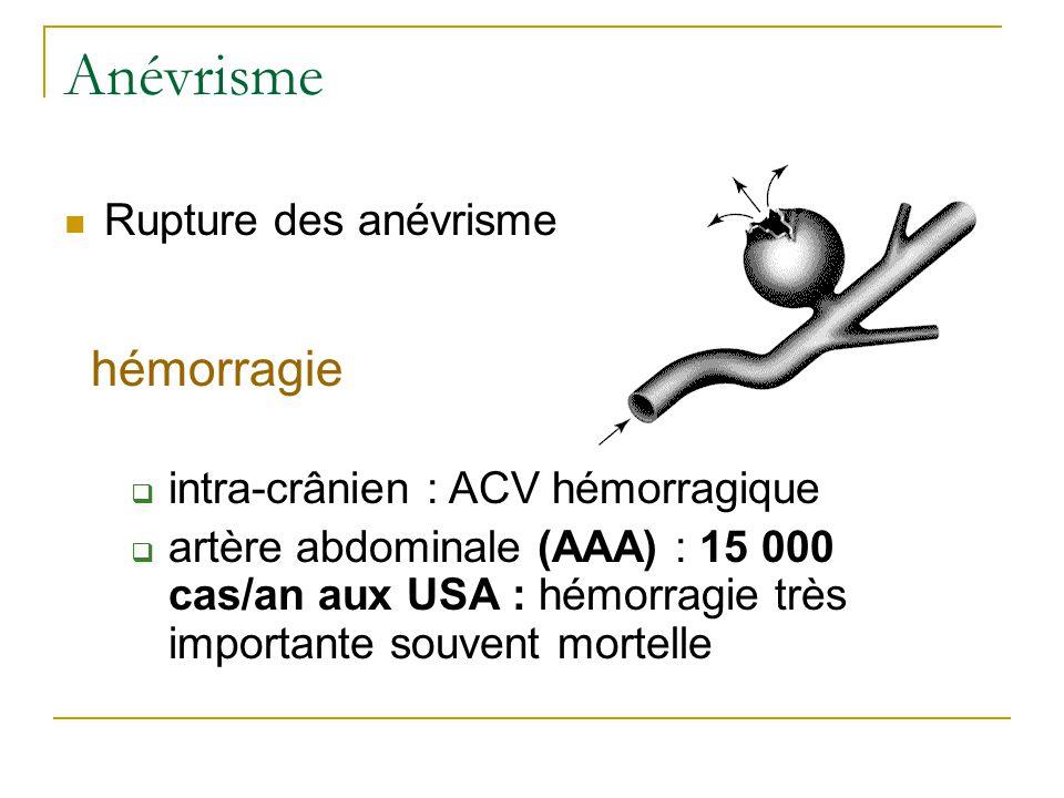 Anévrisme Rupture des anévrisme hémorragie intra-crânien : ACV hémorragique artère abdominale (AAA) : 15 000 cas/an aux USA : hémorragie très importante souvent mortelle