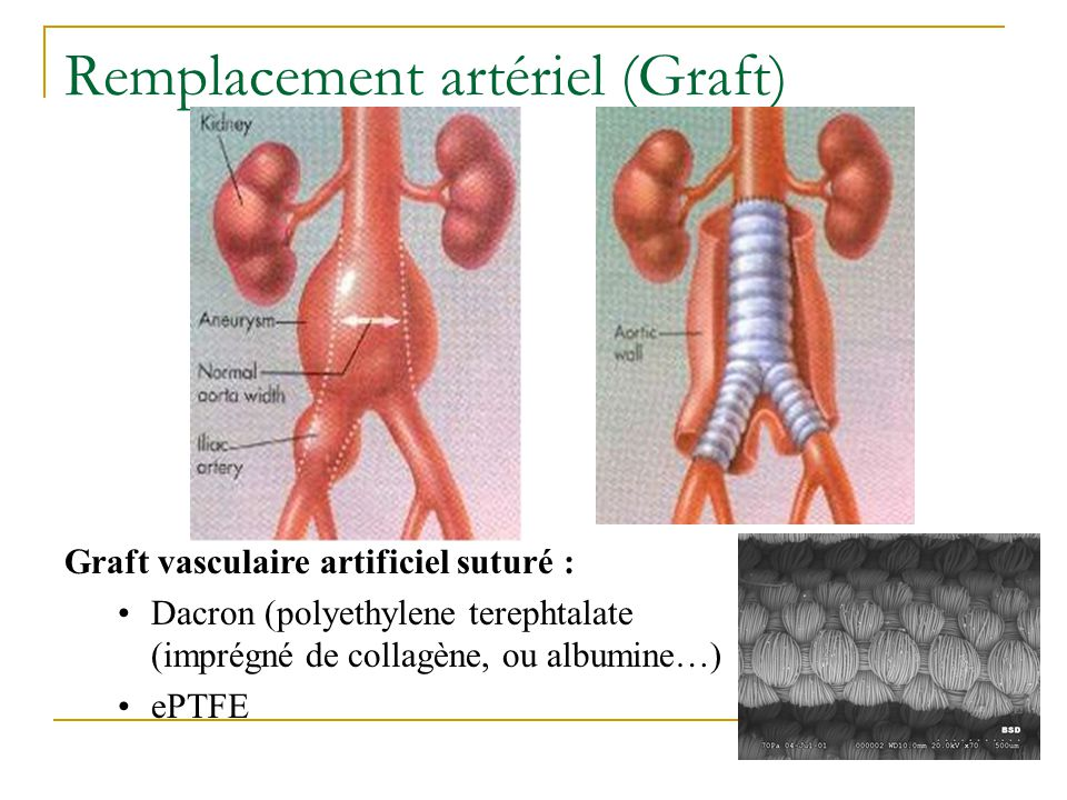 Remplacement artériel (Graft) Graft vasculaire artificiel suturé : Dacron (polyethylene terephtalate (imprégné de collagène, ou albumine…) ePTFE
