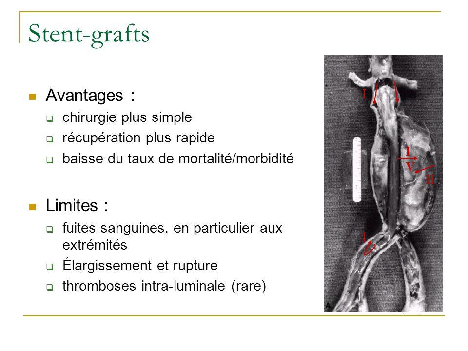 Stent-grafts Avantages : chirurgie plus simple récupération plus rapide baisse du taux de mortalité/morbidité Limites : fuites sanguines, en particulier aux extrémités Élargissement et rupture thromboses intra-luminale (rare) I I II IVIV