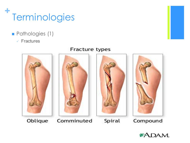 + Terminologies Pathologies (1) Fractures