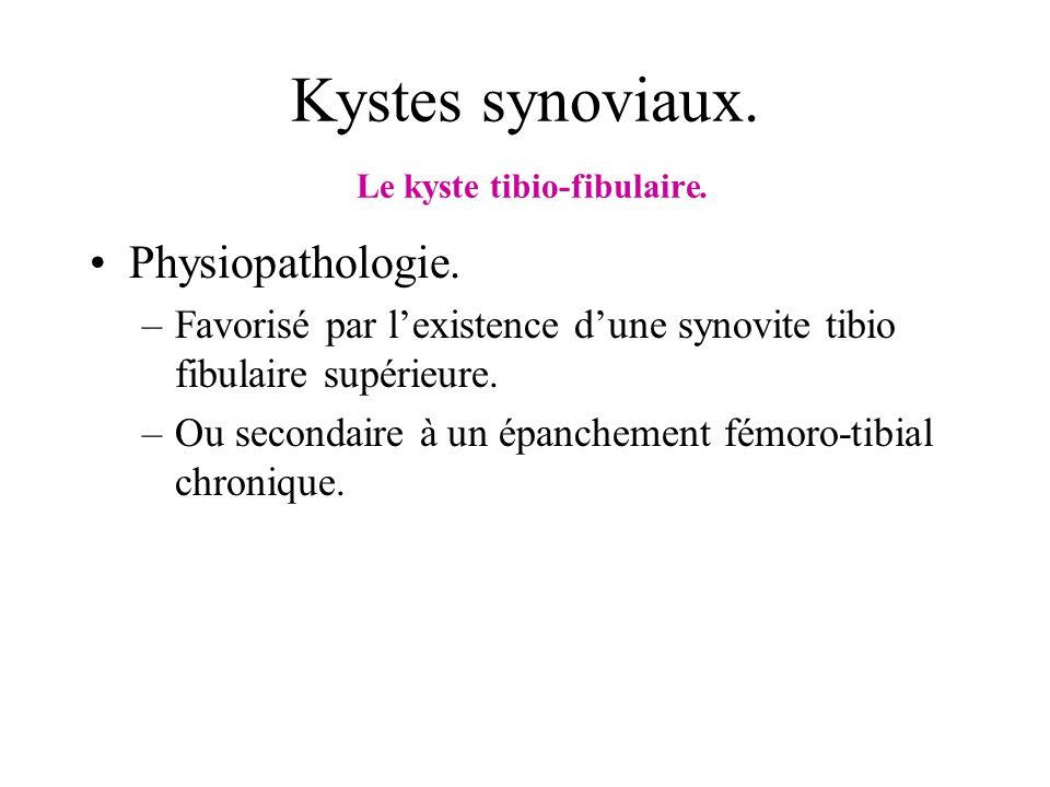 Kystes synoviaux. Le kyste tibio-fibulaire. Physiopathologie. –Favorisé par lexistence dune synovite tibio fibulaire supérieure. –Ou secondaire à un é