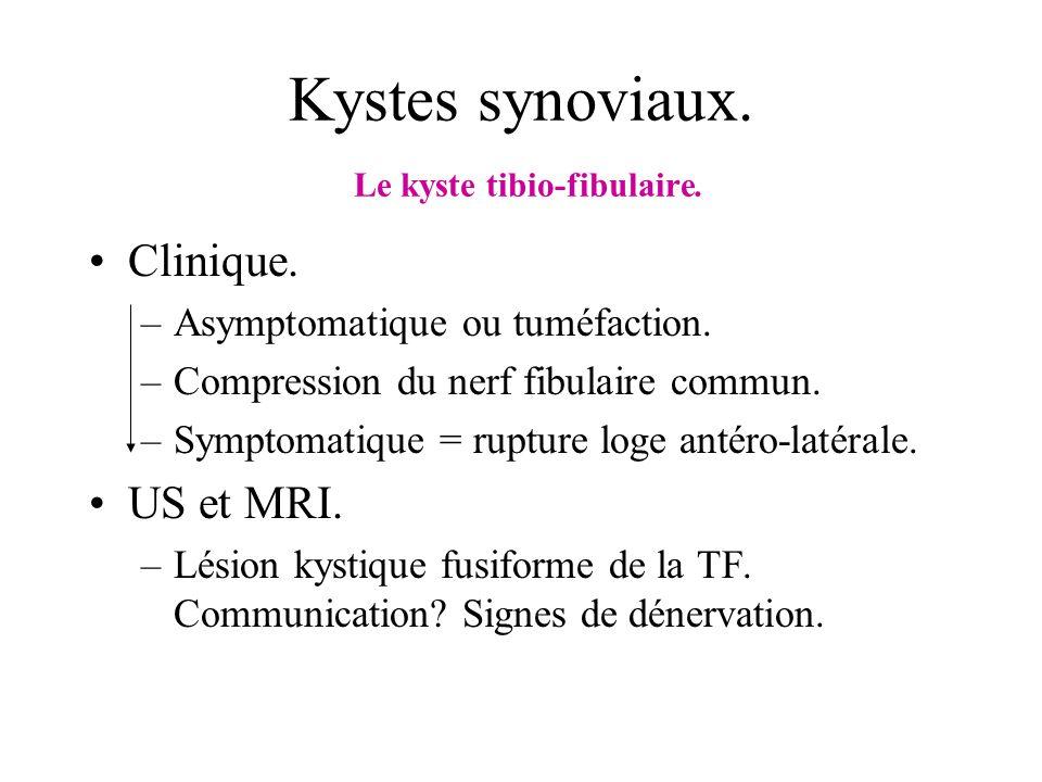 Kystes synoviaux. Le kyste tibio-fibulaire. Clinique. –Asymptomatique ou tuméfaction. –Compression du nerf fibulaire commun. –Symptomatique = rupture