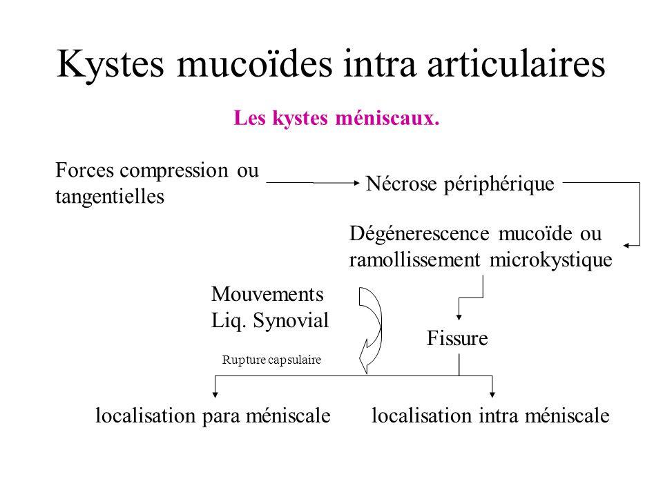 Kystes mucoïdes intra articulaires Les kystes méniscaux. Forces compression ou tangentielles Nécrose périphérique Dégénerescence mucoïde ou ramollisse